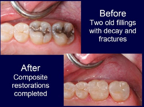 Before and after | Composite Restorations